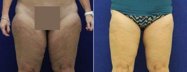 Before and After Photos in , , Thigh Lift in Lexington, KY
