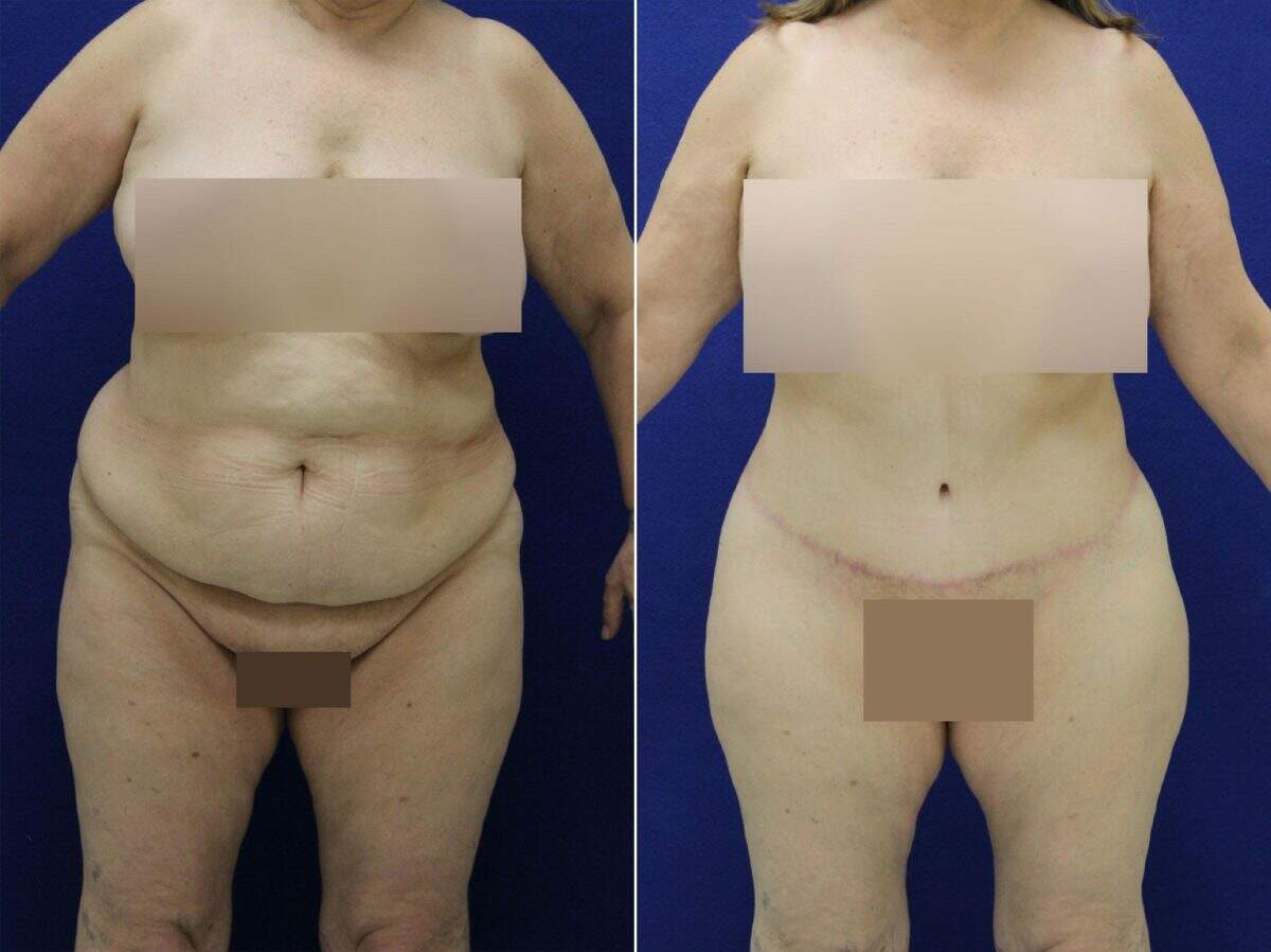 Tummy Tuck Before and After Photos in Lexington, KY, Patient 8944