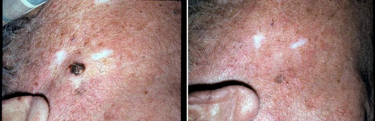 Lesion Removal Before and After Photos in Lexington, KY, Patient 9467