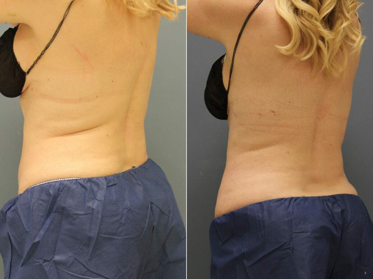 CoolSculpting® Before and After Photos in Lexington, KY, Patient 9300