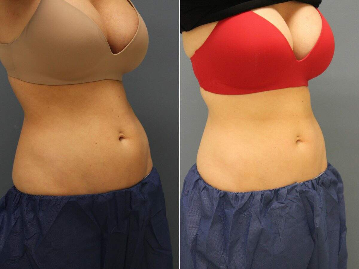 CoolSculpting® Before and After Photos in Lexington, KY, Patient 9314