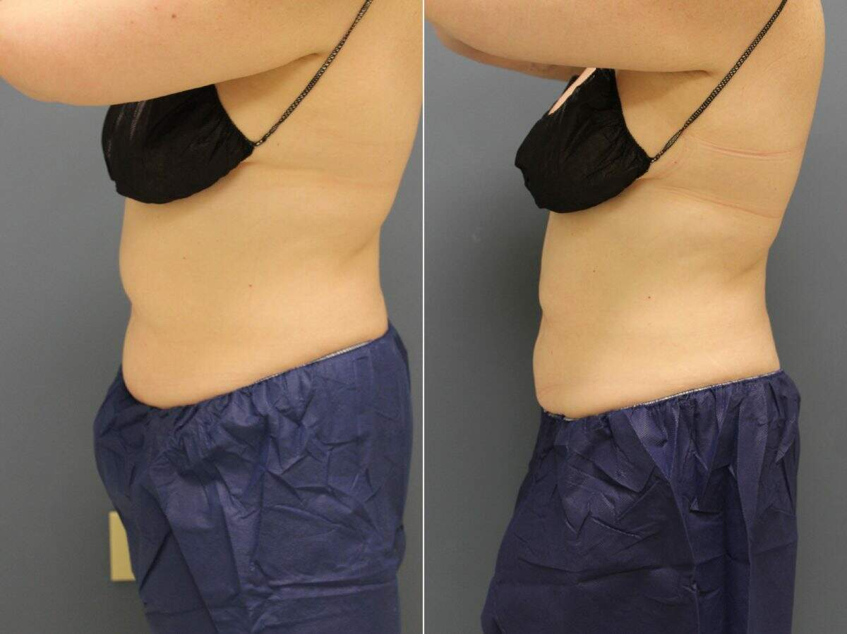 CoolSculpting® Before and After Photos in Lexington, KY, Patient 9325