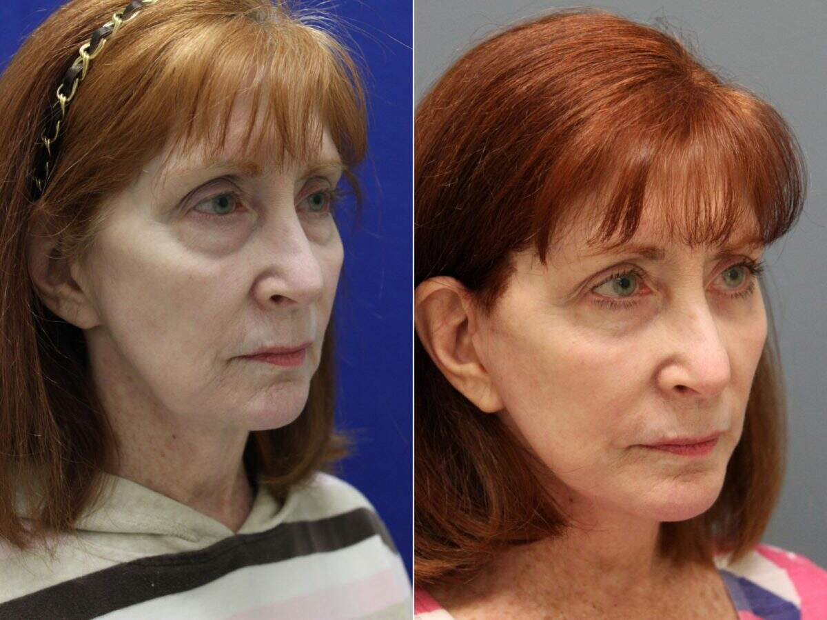 Facelift Before and After Photos in Lexington, KY, Patient 9422