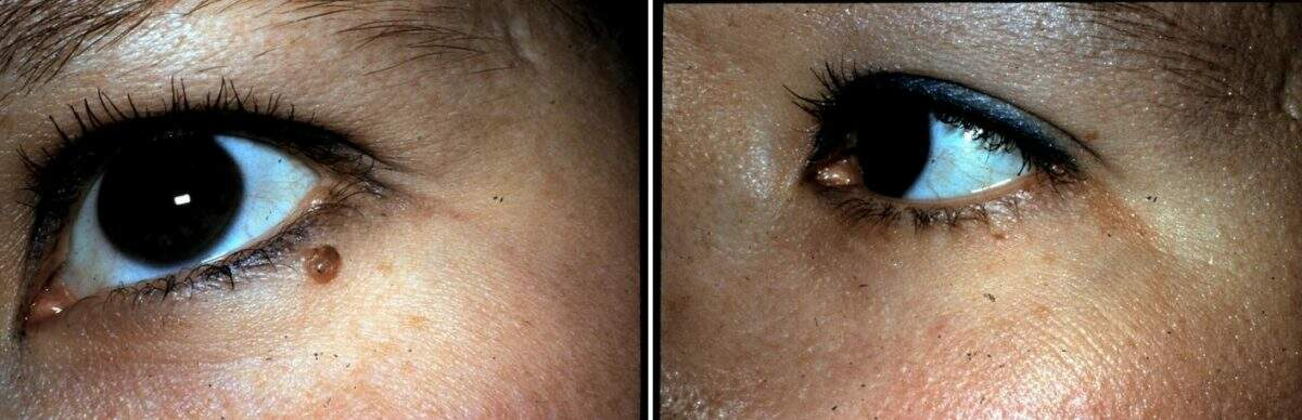 Lesion Removal Before and After Photos in Lexington, KY, Patient 9463