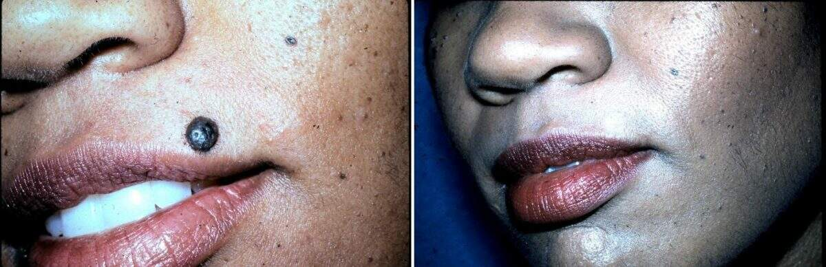 Lesion Removal Before and After Photos in Lexington, KY, Patient 9486