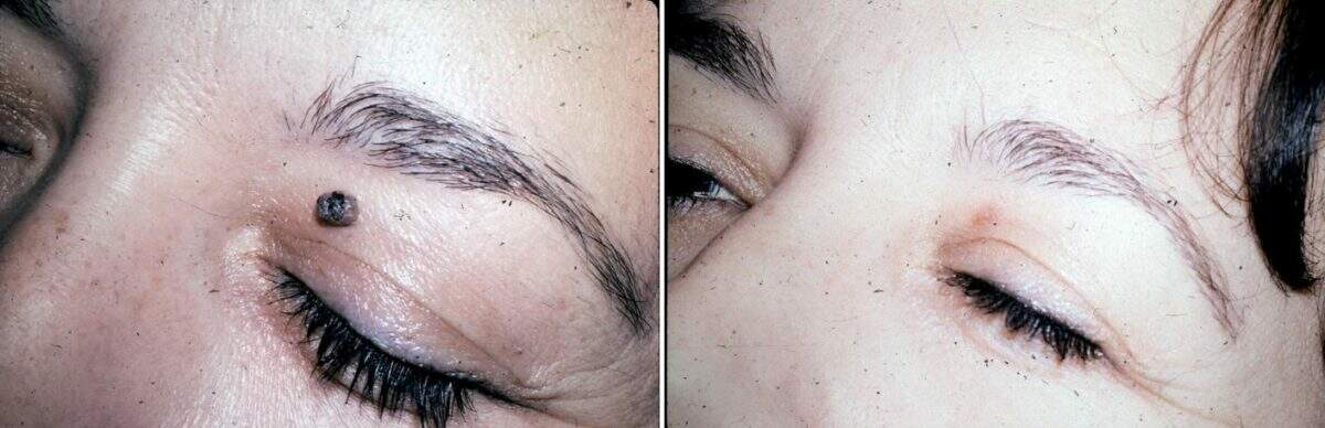 Lesion Removal Before and After Photos in Lexington, KY, Patient 9490