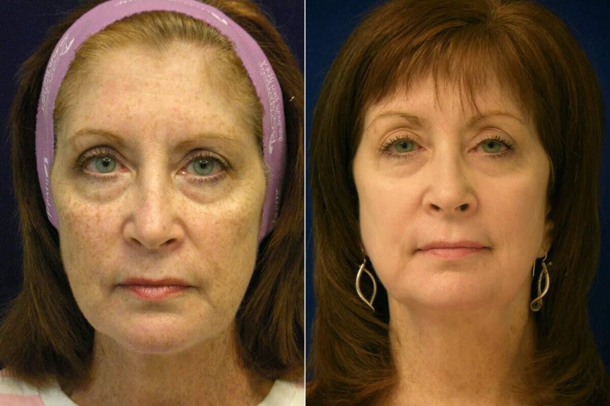 C02 Laser Skin Rejuvenation Before and After Photos in Lexington, KY, Patient 9260