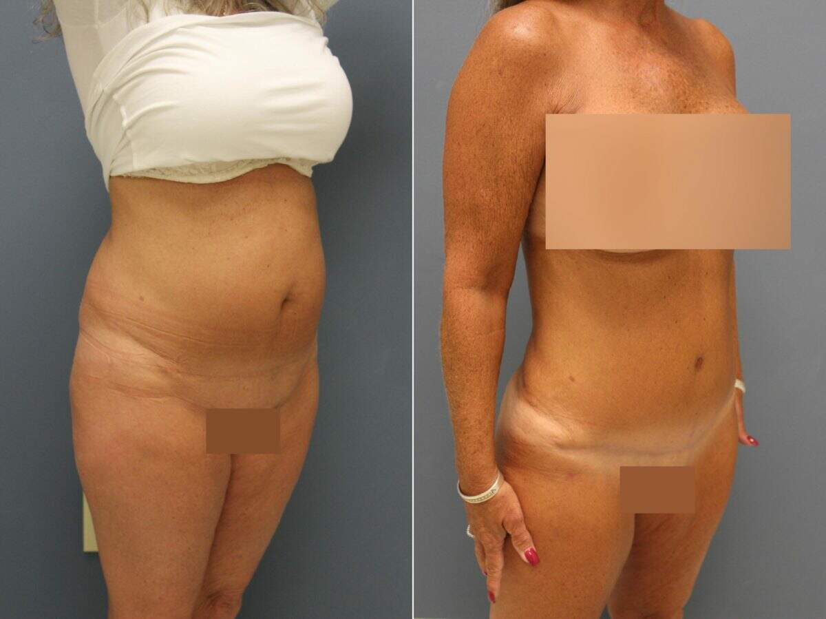 Tummy Tuck Before and After Photos in Lexington, KY, Patient 9526