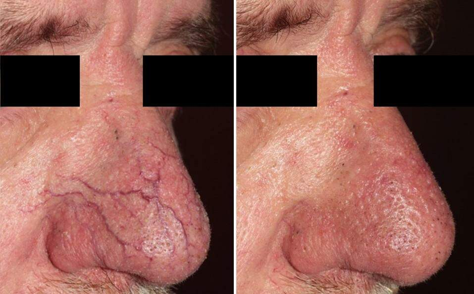 VariLite Before and After Photos in Lexington, KY, Patient 9552