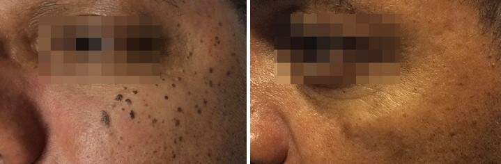 VariLite Before and After Photos in Lexington, KY, Patient 9557