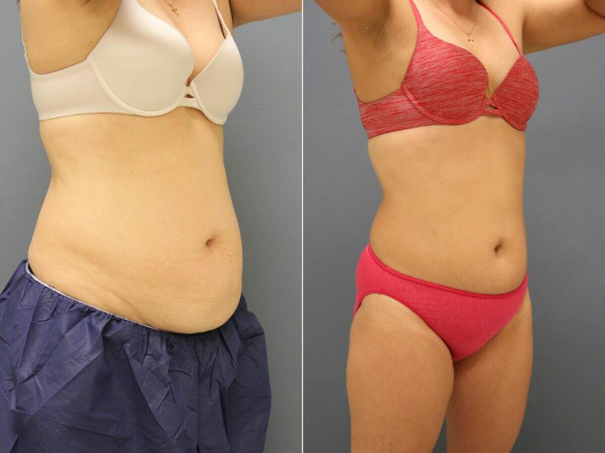 CoolSculpting® Before and After Photos in Lexington, KY, Patient 9651