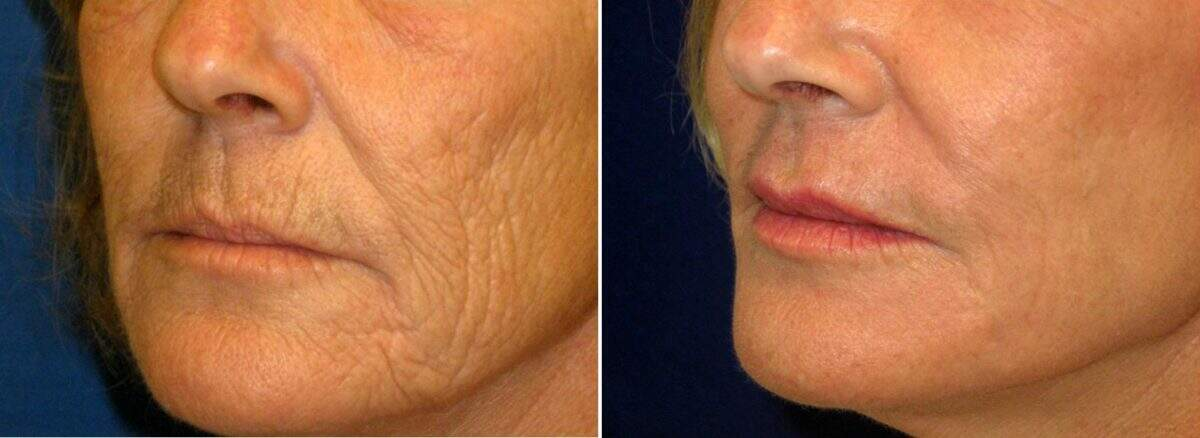 Lip Enhancement Before and After Photos in Lexington, KY, Patient 9571