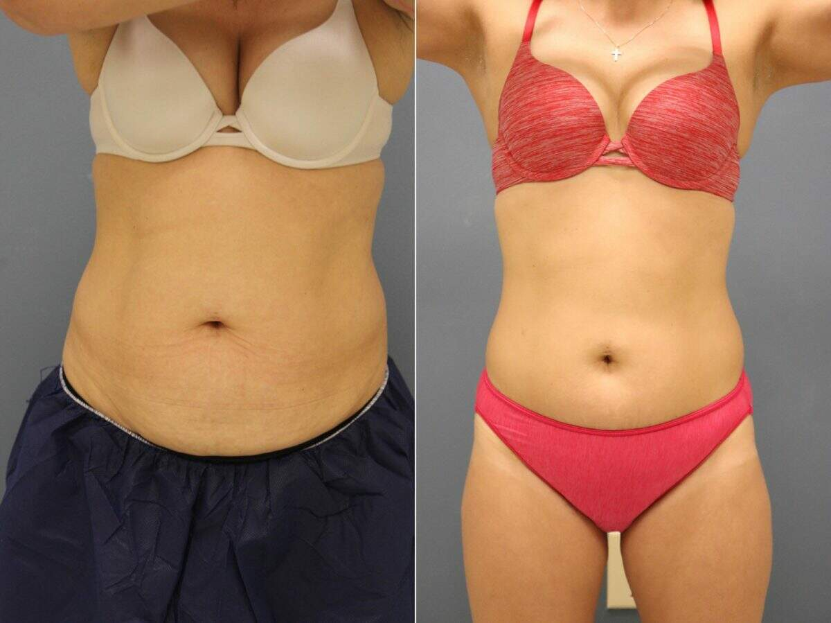 Before and After Photos in , , Coolsculpting in Lexington, KY