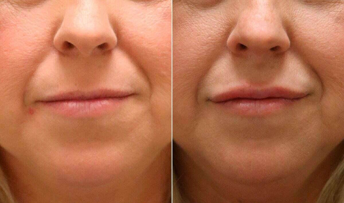 Injectable Fillers Before and After Photos in Lexington, KY, Patient 9986
