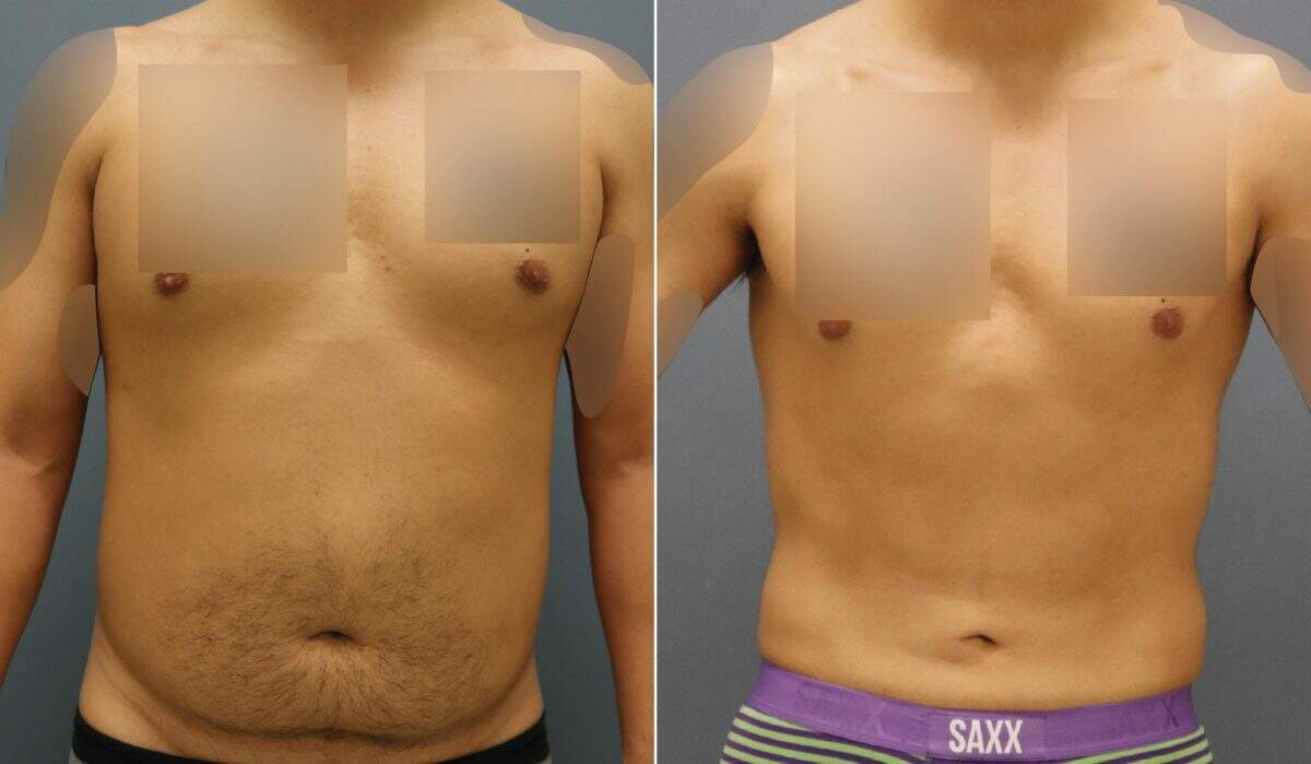 Liposuction Before and After Photos in Lexington, KY, Patient 10222