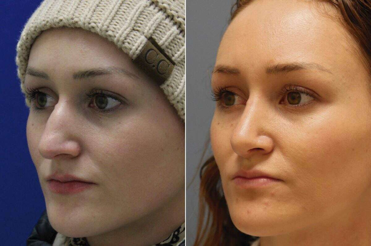 Nose Reshaping (Rhinoplasty) Before and After Photos in Lexington, KY, Patient 10293