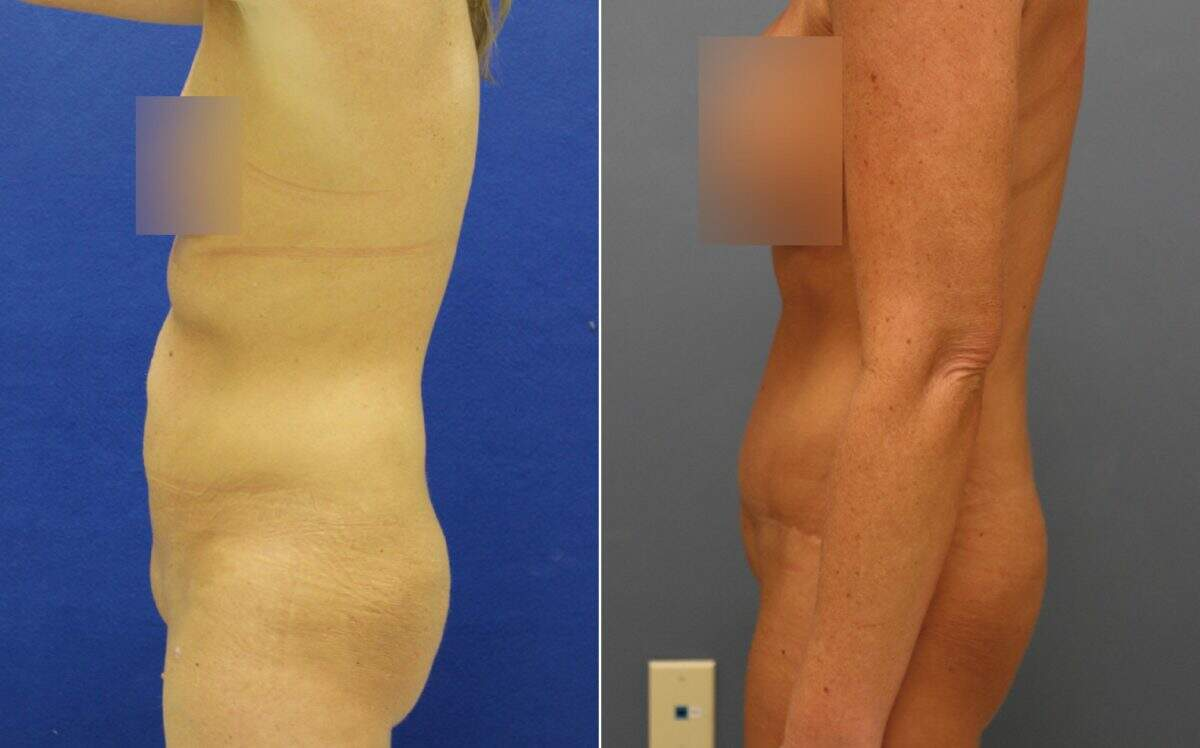 Tummy Tuck Before and After Photos in Lexington, KY, Patient 10107