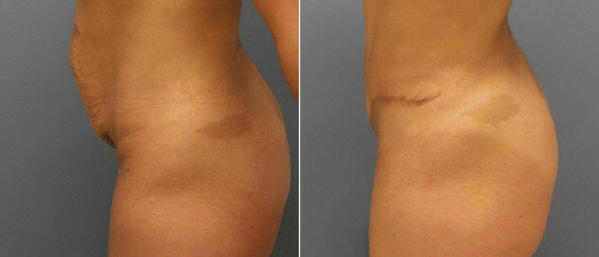Tummy Tuck Before and After Photos in Lexington, KY, Patient 10276