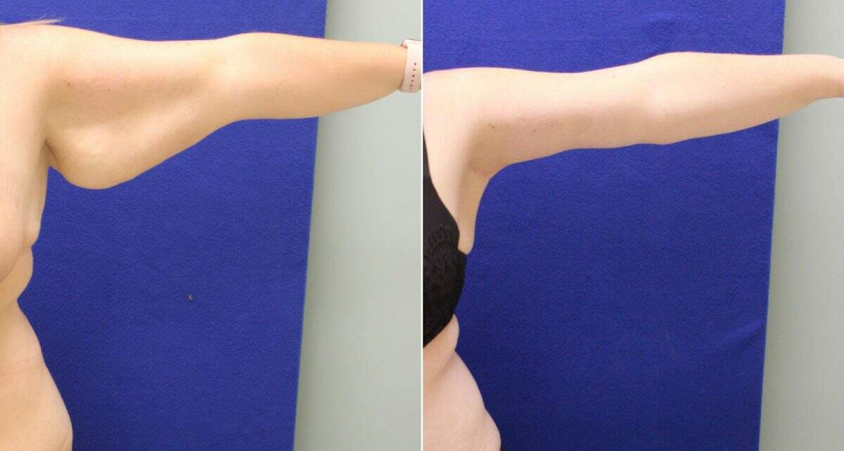 Arm Lift Before and After Photos in Lexington, KY, Patient 10374