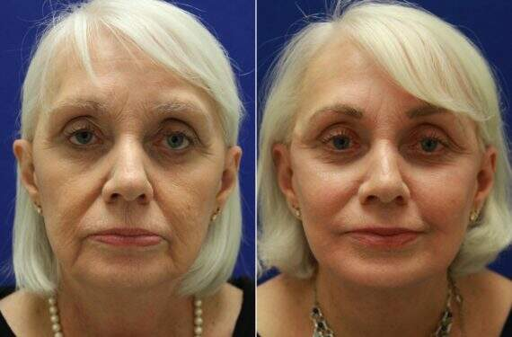 Before and After Photos in , , Mini Facelift