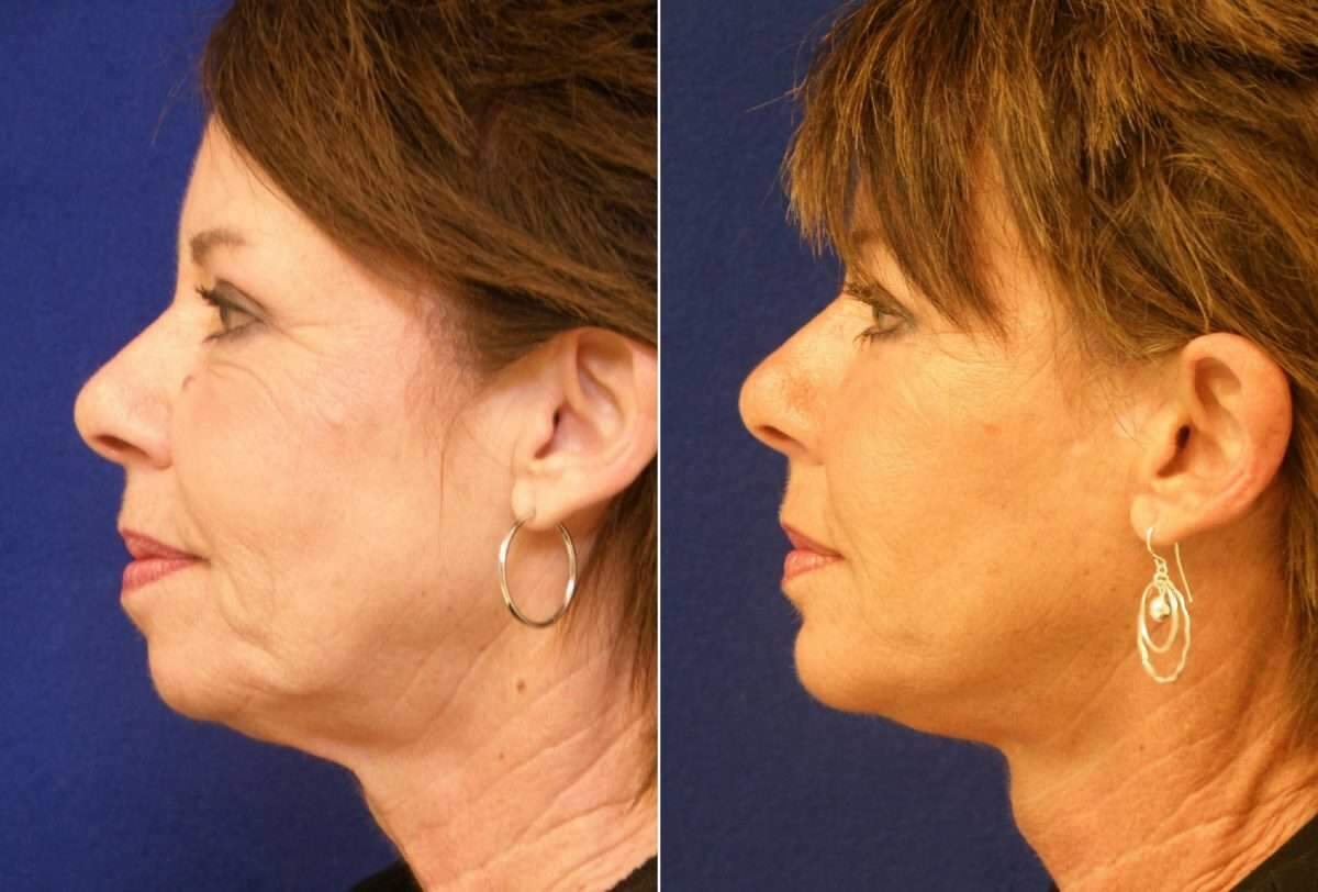 Facelift Before and After Photos in Lexington, KY, Patient 6447