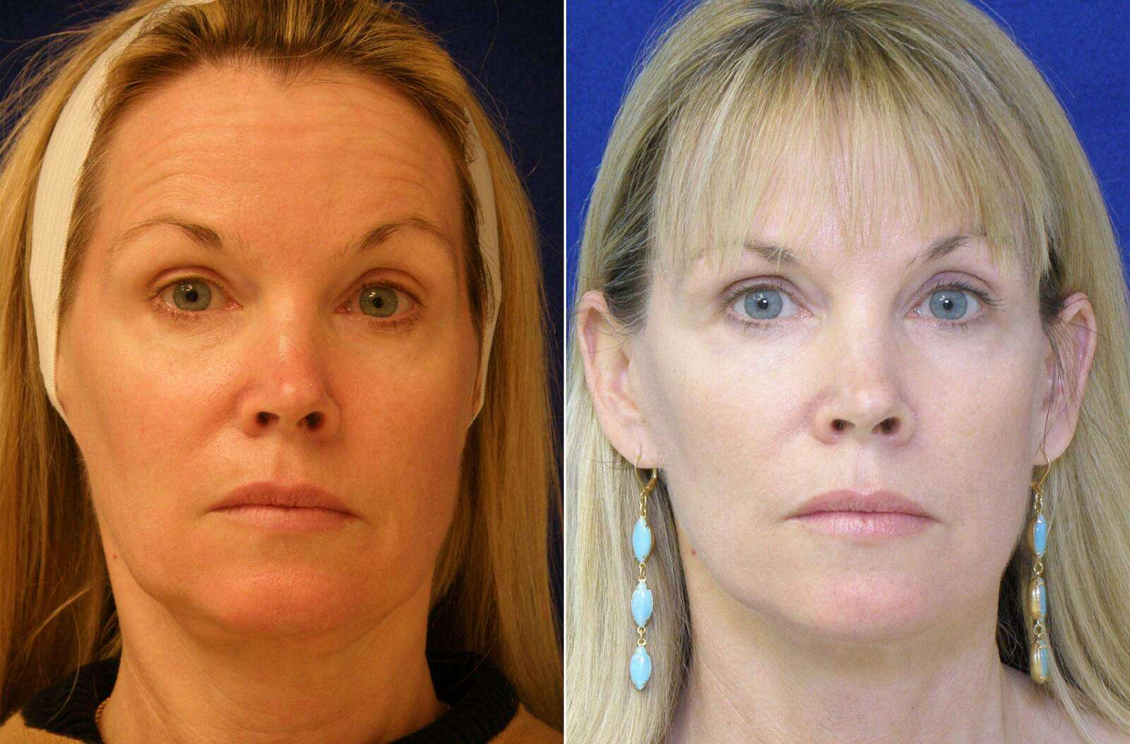Before and After Photos in , , Facelift in Lexington, KY