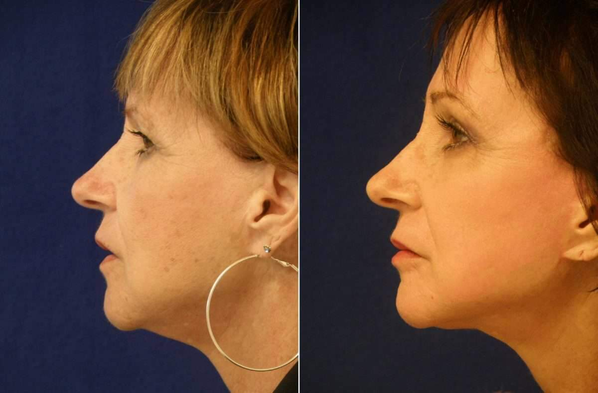 Facelift Before and After Photos in Lexington, KY, Patient 6487