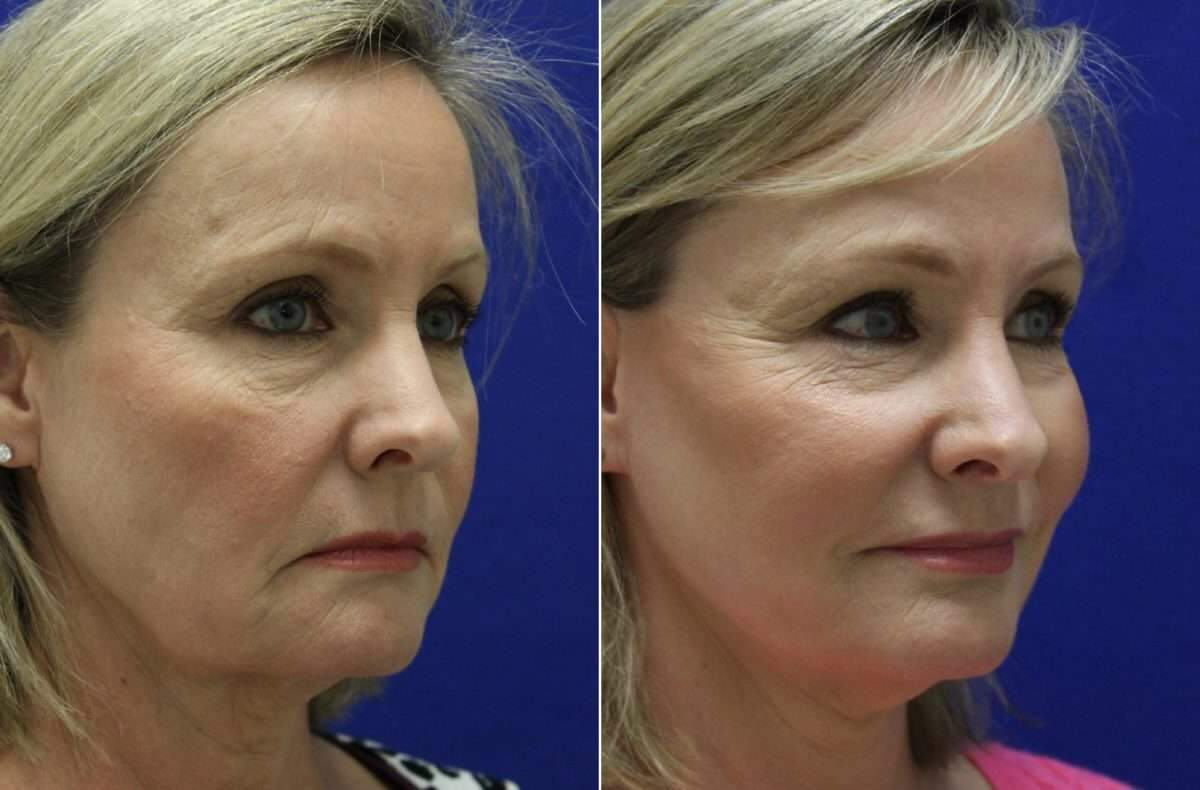 Facelift Before and After Photos in Lexington, KY, Patient 6508