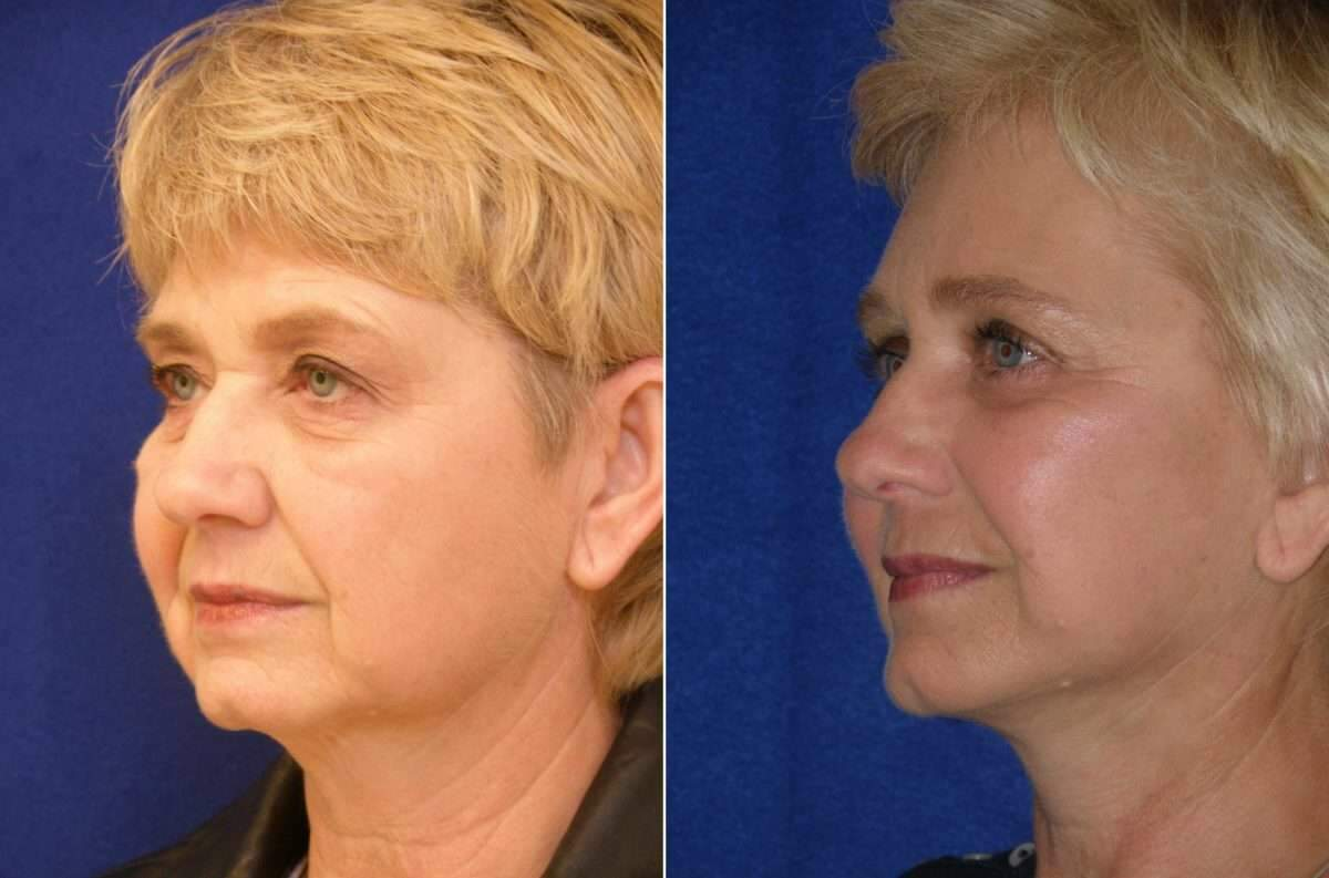 Brow Lift Before and After Photos in Lexington, KY, Patient 6522