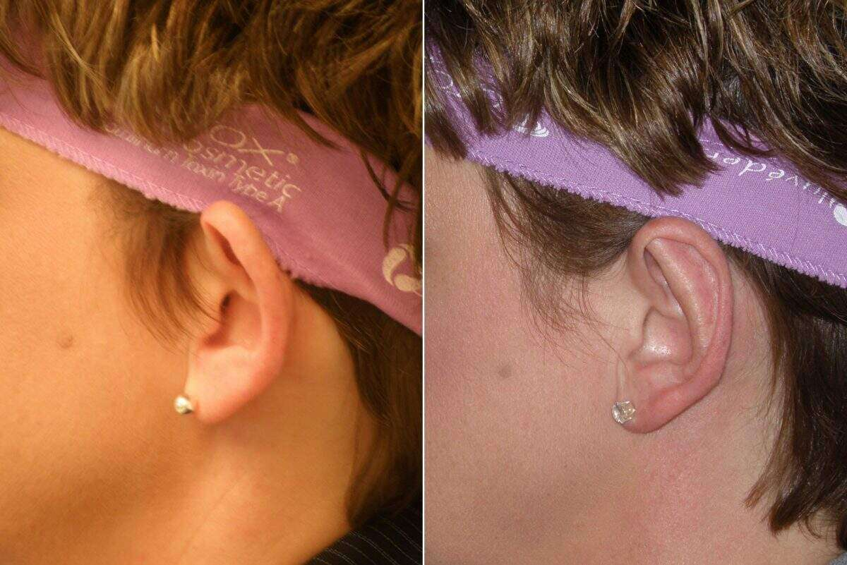 Ear Enhancements Before and After Photos in Lexington, KY, Patient 6773