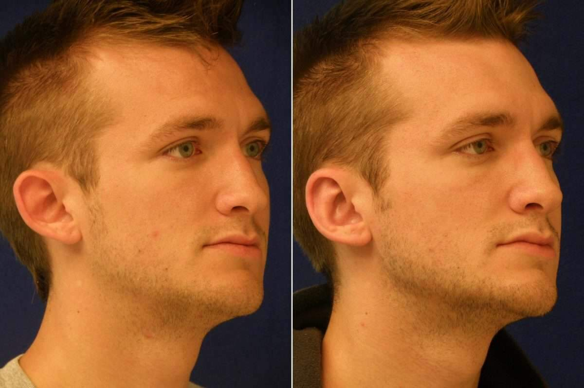 Ear Enhancements Before and After Photos in Lexington, KY, Patient 6790