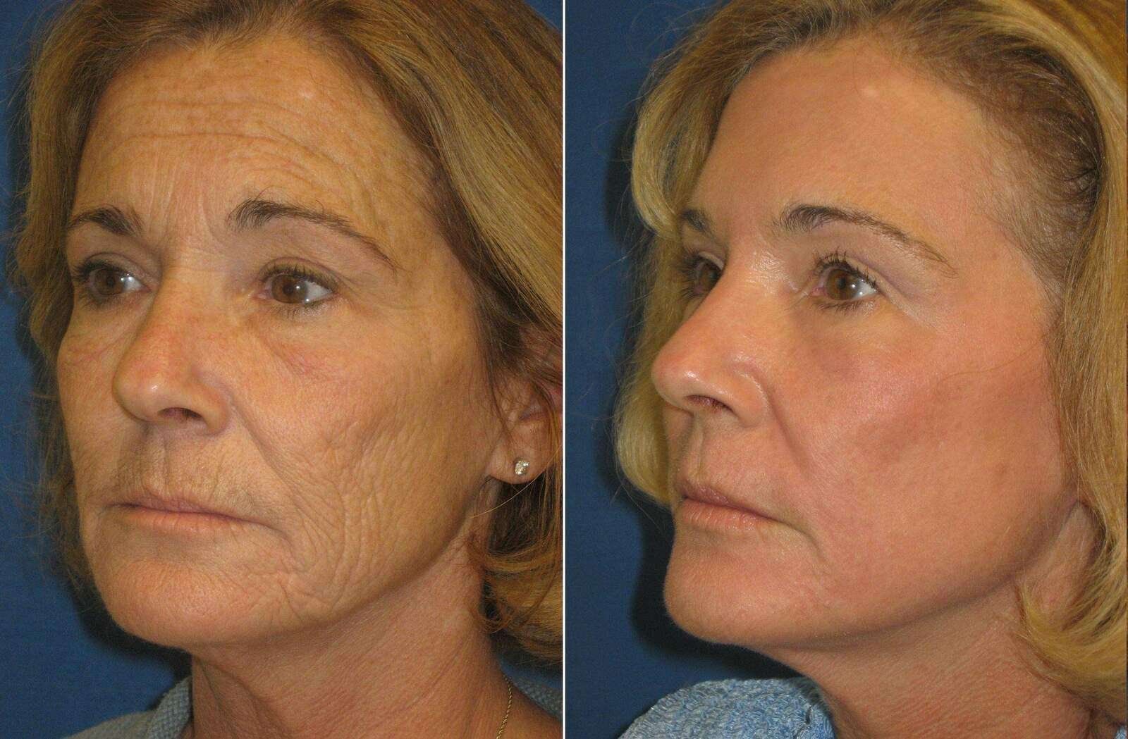 Before and After Photos in , , Laser Skin Rejuvenation