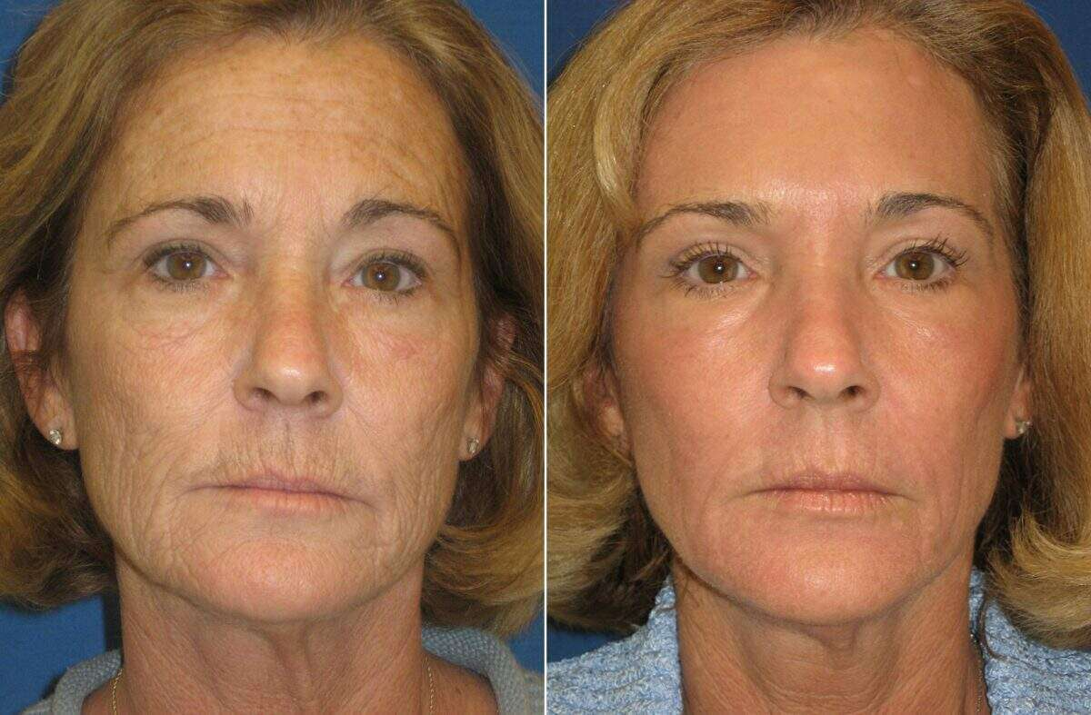 C02 Laser Skin Rejuvenation Before and After Photos in Lexington, KY, Patient 6922