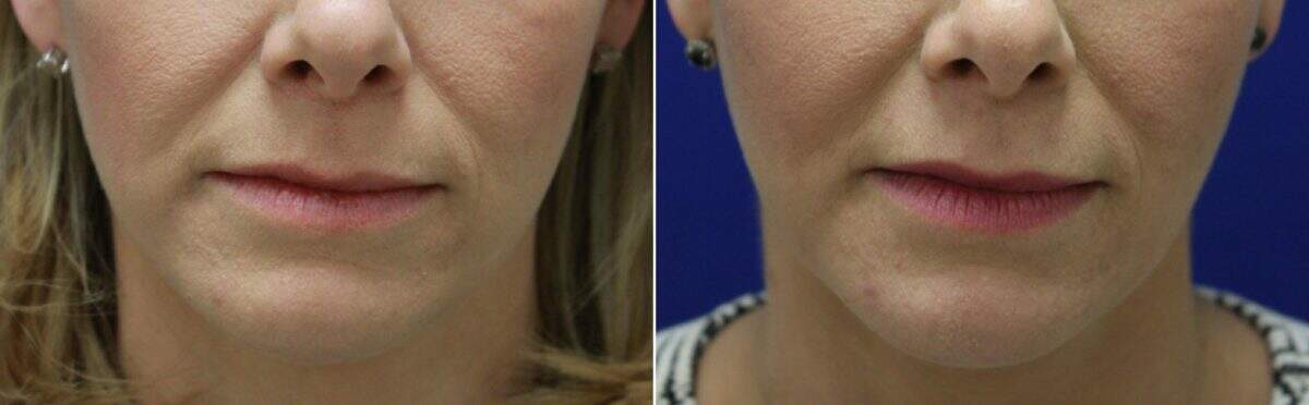 Lip Enhancement Before and After Photos in Lexington, KY, Patient 6990