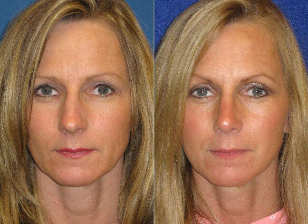 Nose Reshaping (Rhinoplasty) Before and After Photos in Lexington, KY, Patient 7050