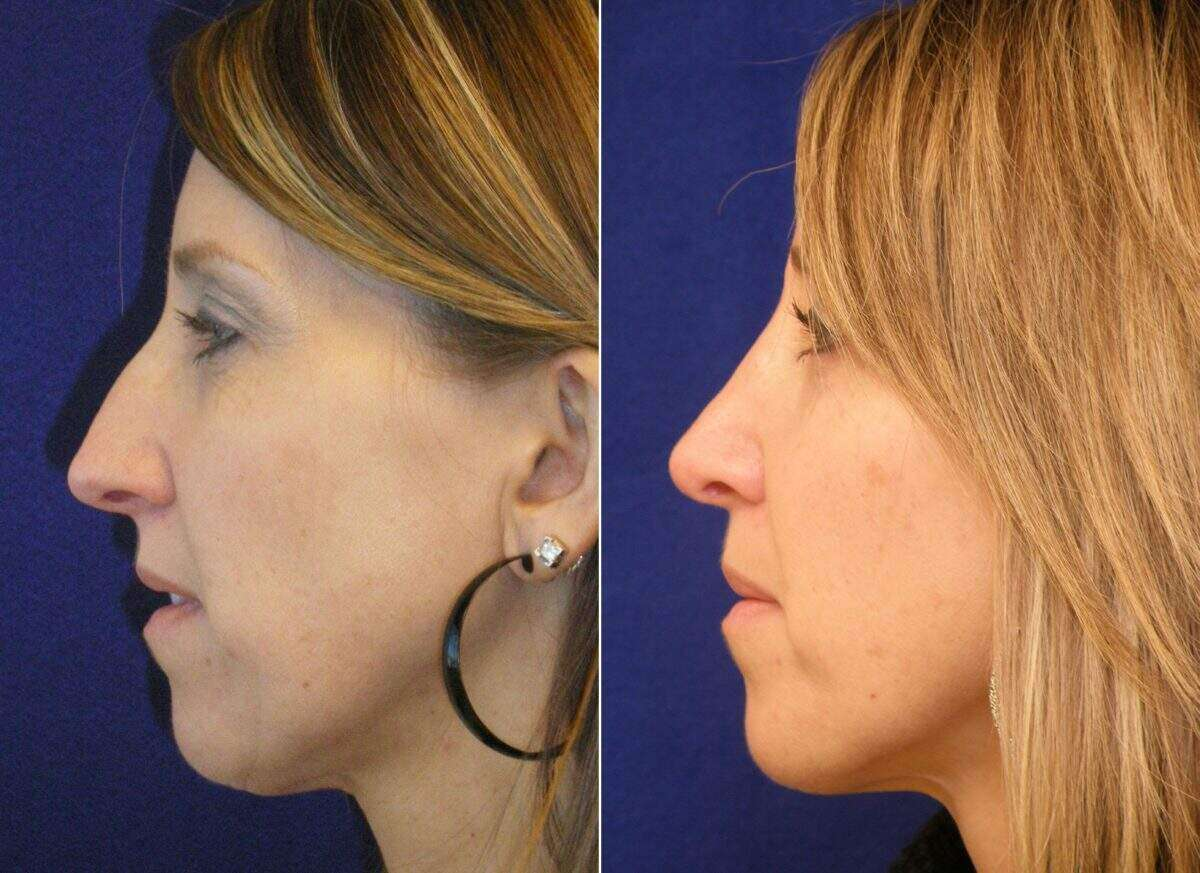 Nose Reshaping (Rhinoplasty) Before and After Photos in Lexington, KY, Patient 7070