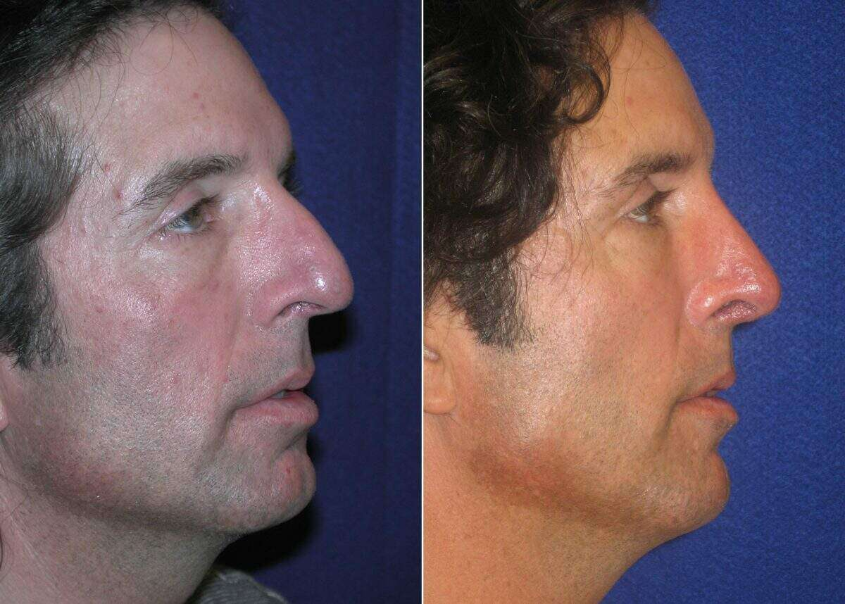 Nose Reshaping (Rhinoplasty) Before and After Photos in Lexington, KY, Patient 7080