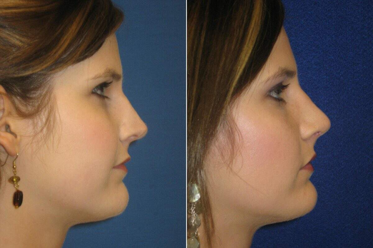 Nose Reshaping (Rhinoplasty) Before and After Photos in Lexington, KY, Patient 7140