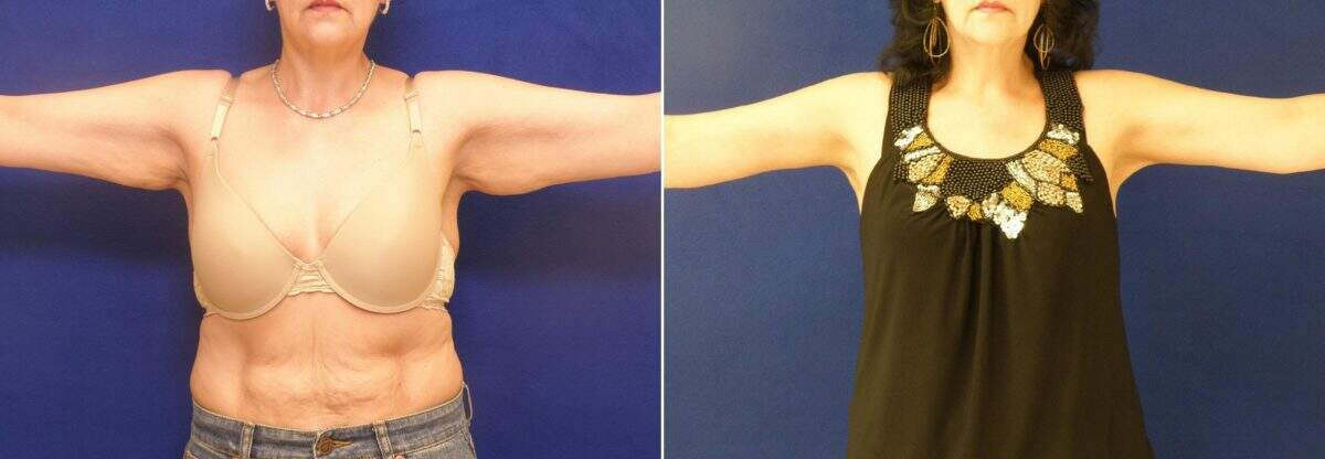 Arm Lift Before and After Photos in Lexington, KY, Patient 7283