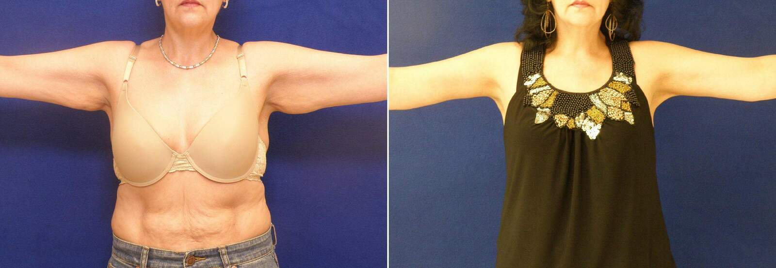 Before and After Photos in , , Arm Lift in Lexington, KY