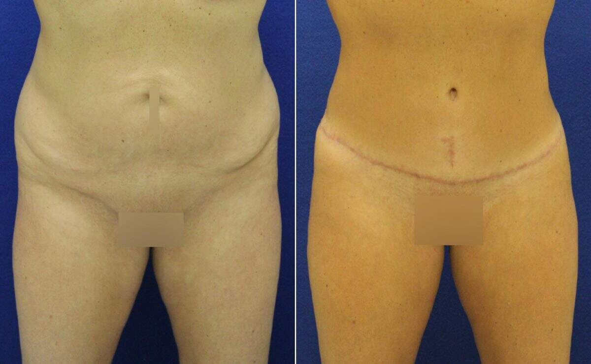 Tummy Tuck Before and After Photos in Lexington, KY, Patient 10478