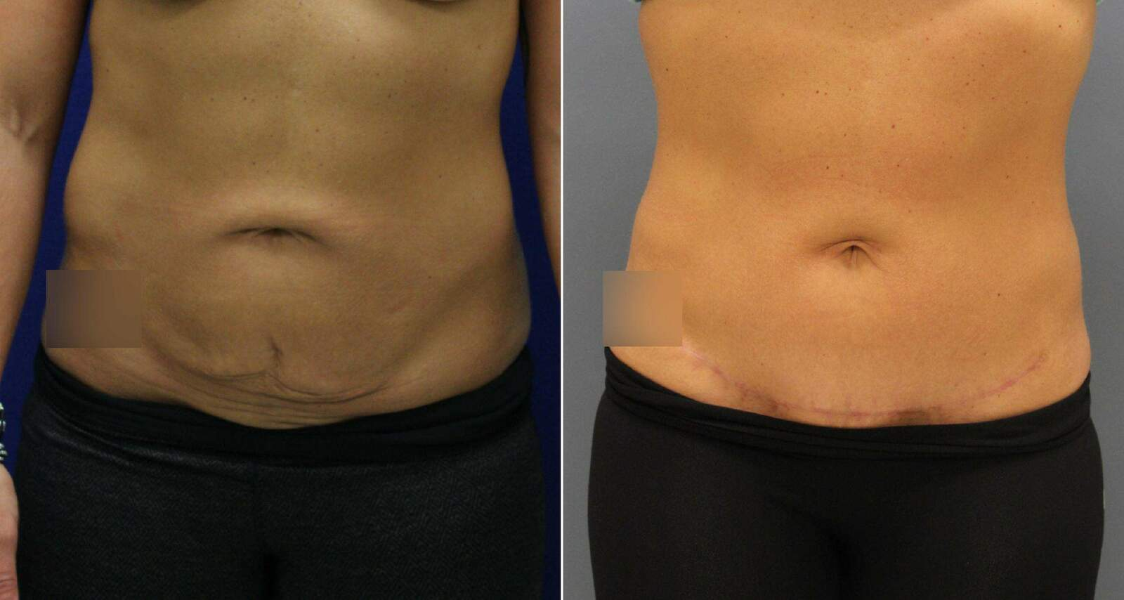 Before and After Photos in , , Modified or Mini-Tummy Tuck in Lexington, KY