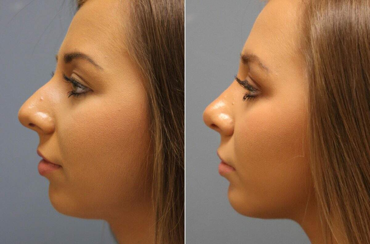 Chin Augmentation Before and After Photos in Lexington, KY, Patient 11001