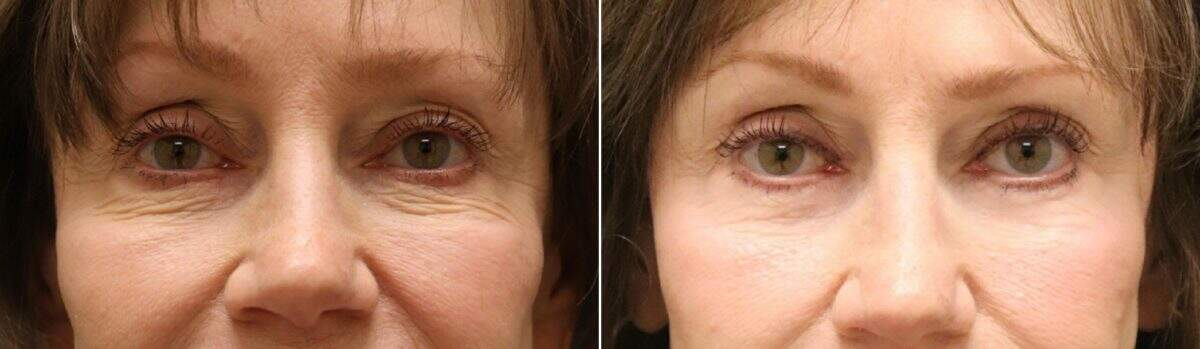 Lower Blepharoplasty Before and After Photos in Lexington, KY, Patient 10943