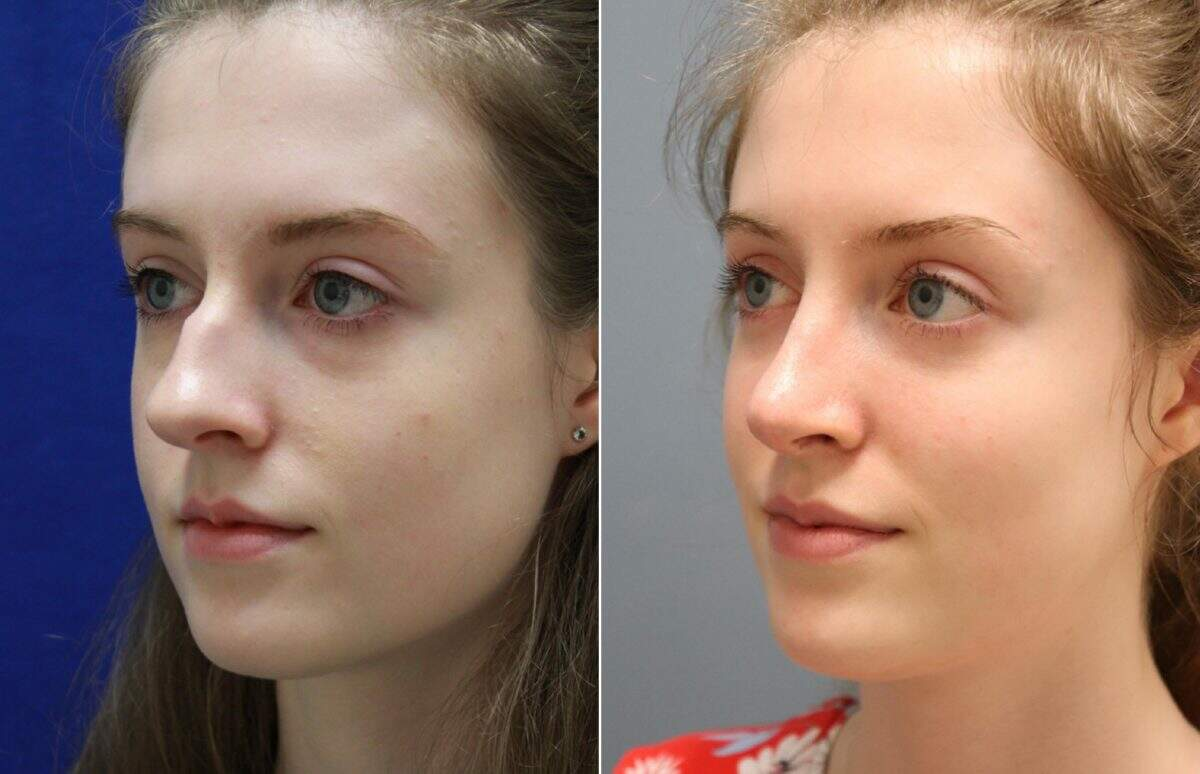 Nose Reshaping (Rhinoplasty) Before and After Photos in Lexington, KY, Patient 10989