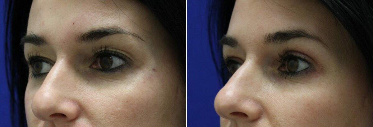 Upper Blepharoplasty Before and After Photos in Lexington, KY, Patient 6579