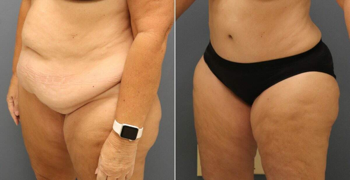 Tummy Tuck Before and After Photos in Lexington, KY, Patient 10960