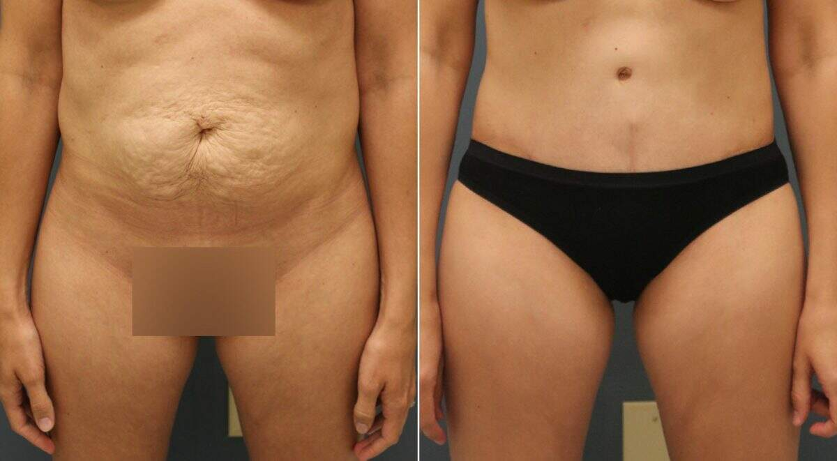 Tummy Tuck Before and After Photos in Lexington, KY, Patient 10969