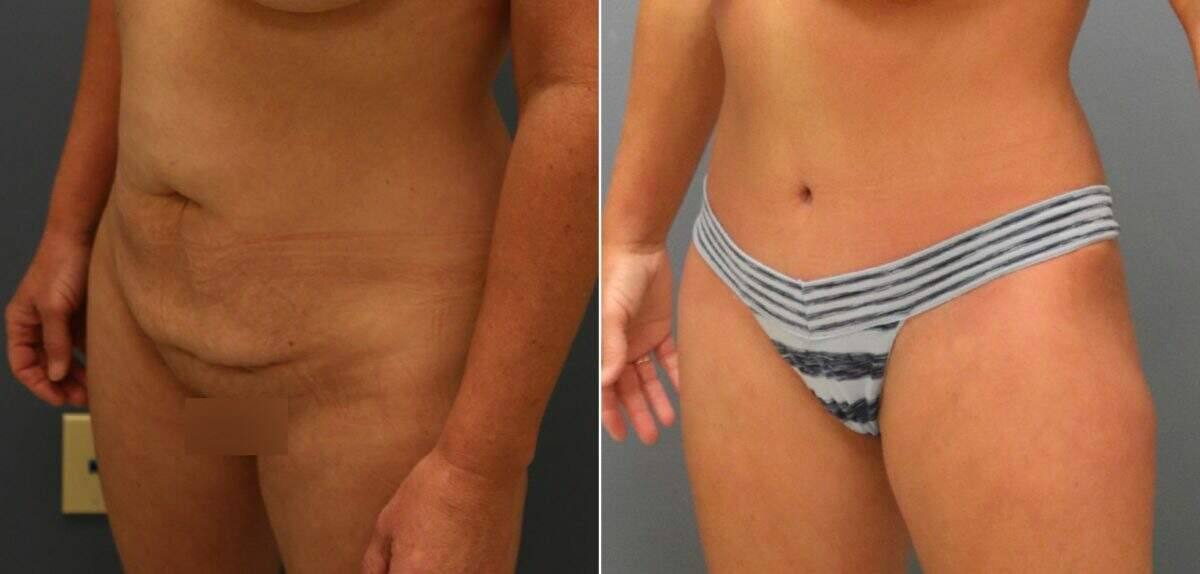 Tummy Tuck Before and After Photos in Lexington, KY, Patient 11026