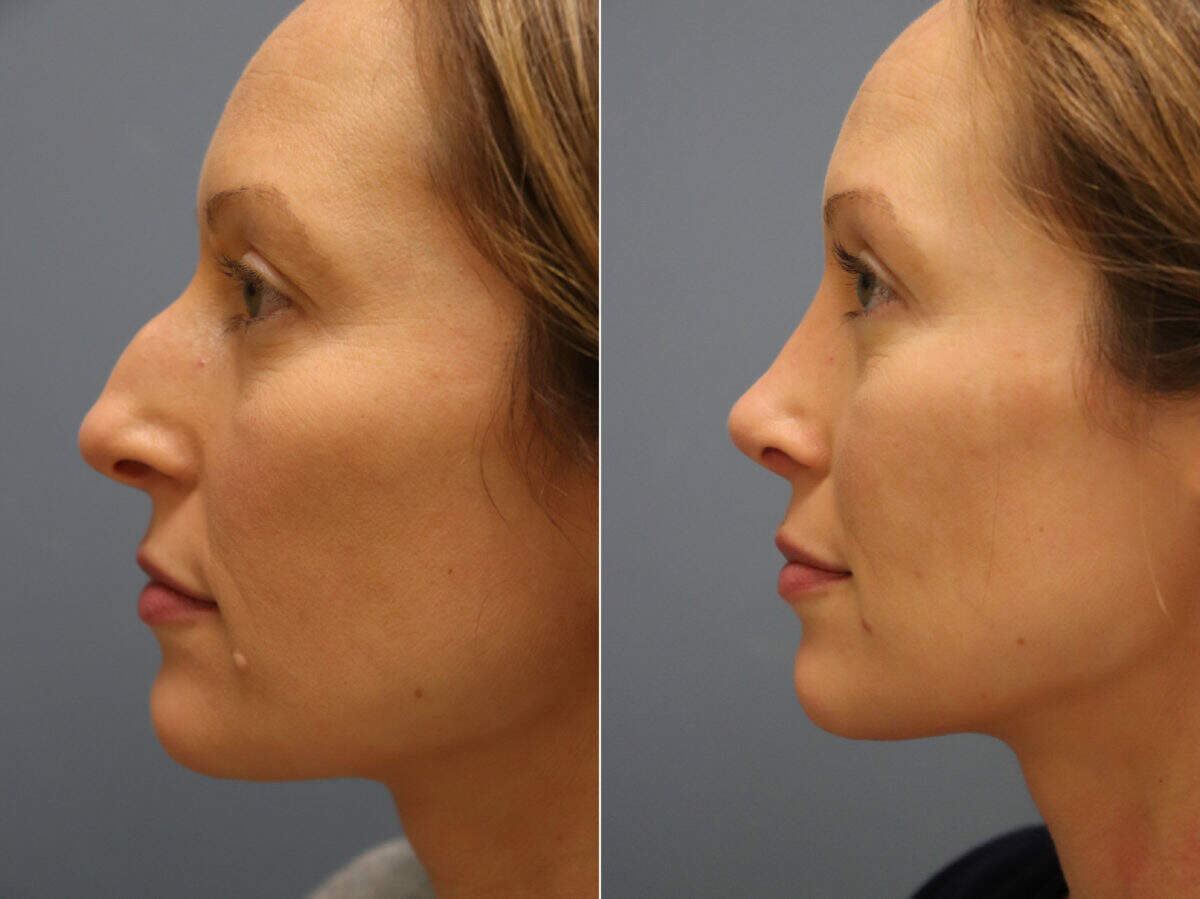 Nose Reshaping (Rhinoplasty) Before and After Photos in Lexington, KY, Patient 11626